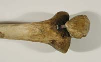 shin bone and knee cap